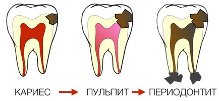 karies-pulpit-periodontit.jpg