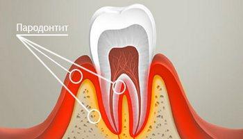 lechenie-parodontita.jpg