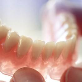 Нелойновые зубные протезы