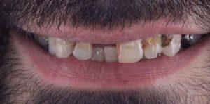 Метало-керамика на собственых зубах до