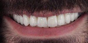 Метало-керамика на собственых зубах после