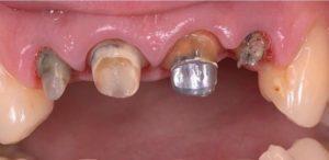 Восстановление фронтальных зубов металло-керамическими коронками Vita Germania до