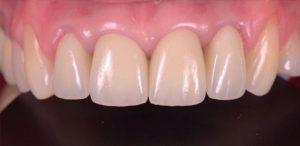 Восстановление фронтальных зубов металло-керамическими коронками Vita Germania после