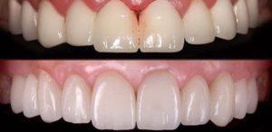 Восстановление разрушеных зубов с помощю керамических коронок