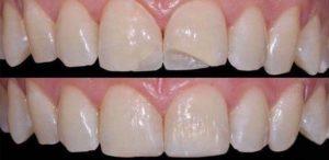 Восстановление сколов зубов с помощью нанокомпозита filtek 3м после